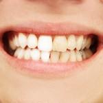 Dişleri Plaklardan Korumak İçin 5 Kolay Adım