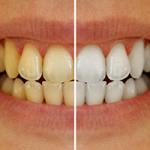 Dişlerimin Sararmasını Nasıl Engelleyebilirim?