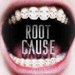 Root Cause Belgeseli Hakkında Diş Hekimi Görüşleri