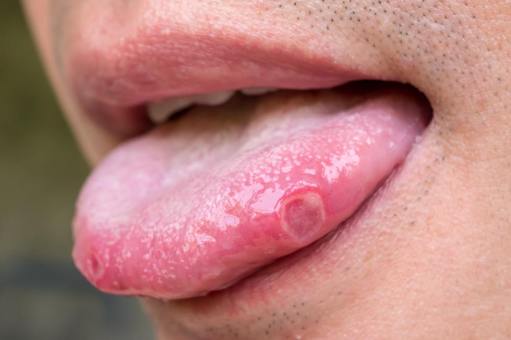 Ağız kanseri semptomları