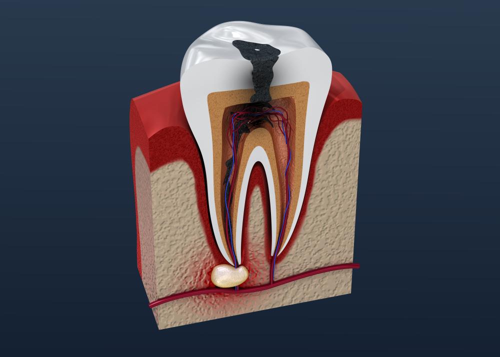 Diş apsesi