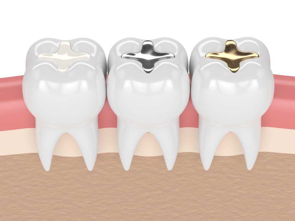 Diş Dolgusunun Ömrü Ne Kadardır