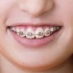 Çocuklarda Ortodonti (Tel) Tedavisinin Avantajları Nelerdir?