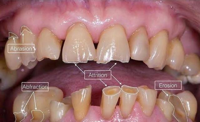 Diş aşınması