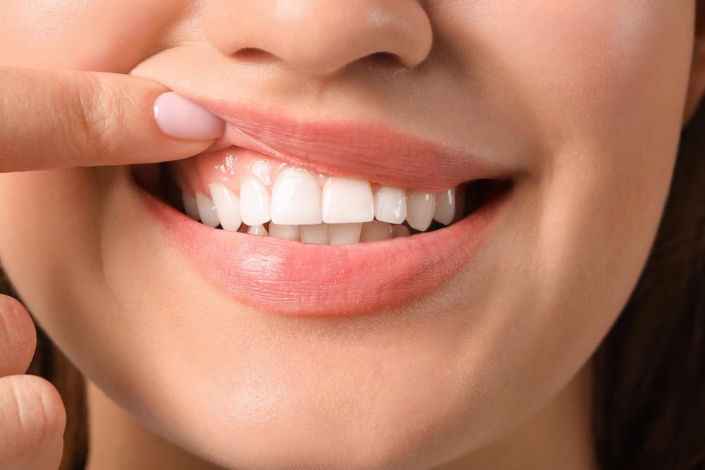Diş eti Kesimi (Şekillendirme) Nedir ve Neden Yapılır