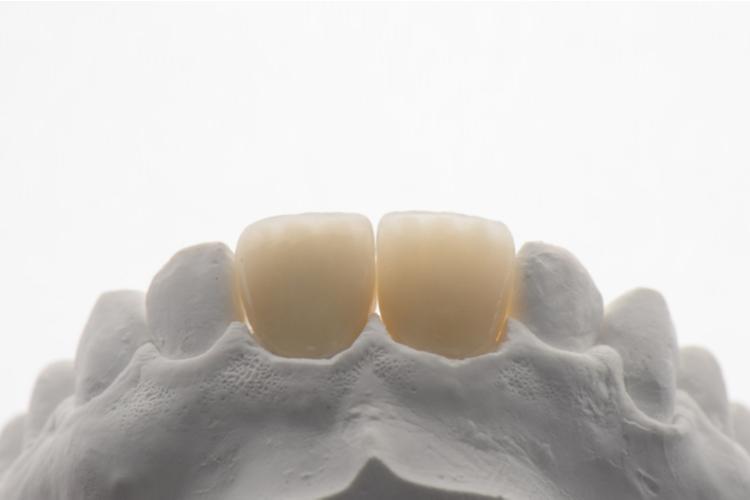 Dişler Neden Şeffaflaşır, Saydamlaşır